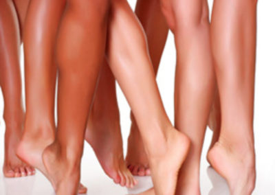 Hair Removal - Laser and Wax